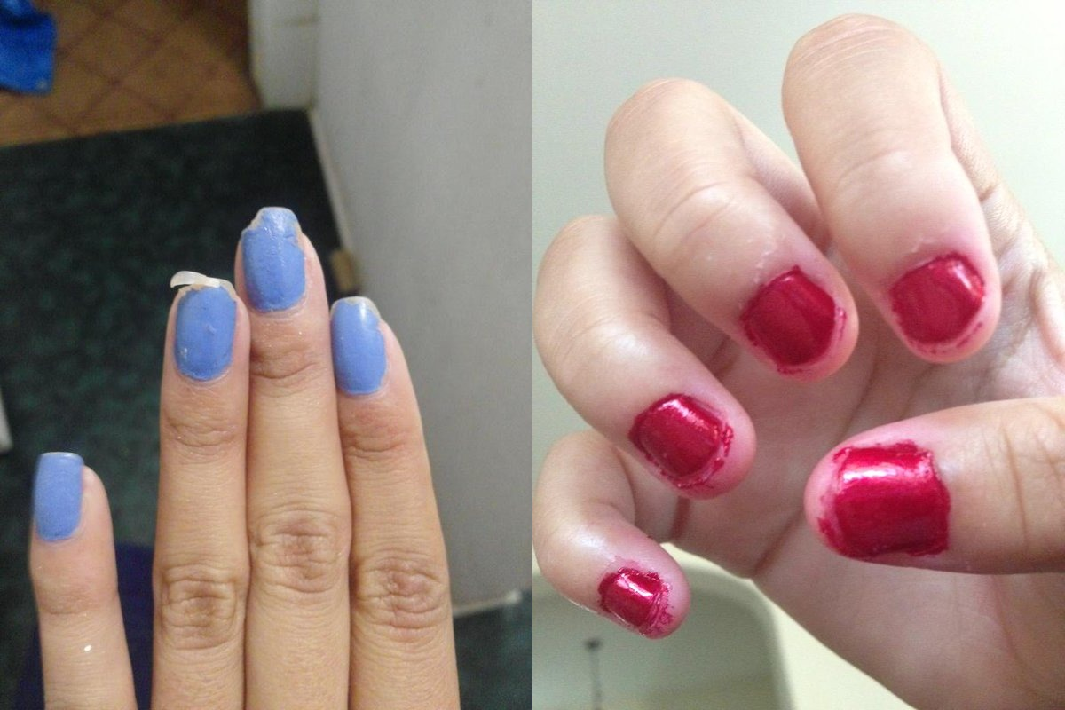 19 Struggles Only Girls With Horrible Nails Can Relate You!