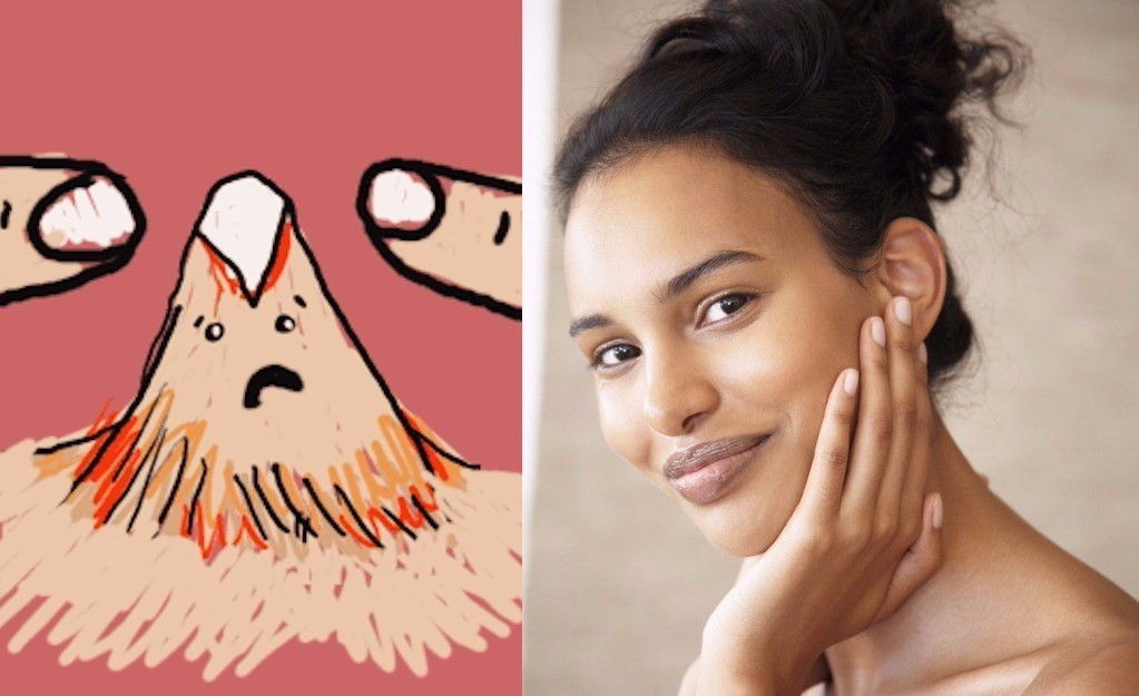 This Open Letter to Adult Acne is the Most Hilarious Thing You Will Read Today!